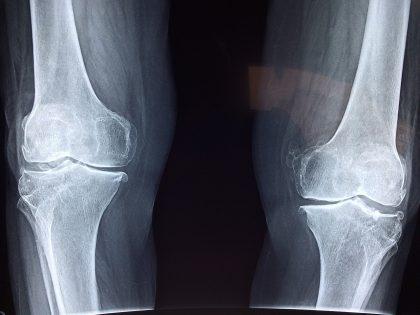 Röntgenaufnahme Beinknochen